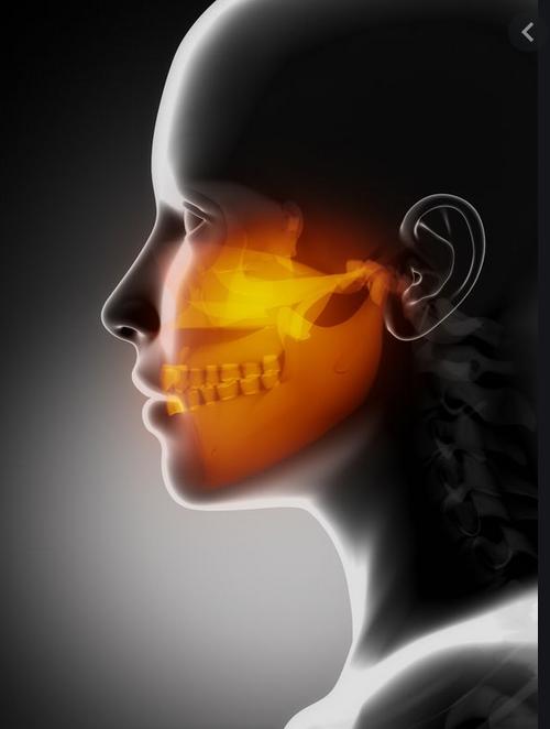 Maxillo-faciale HMTC